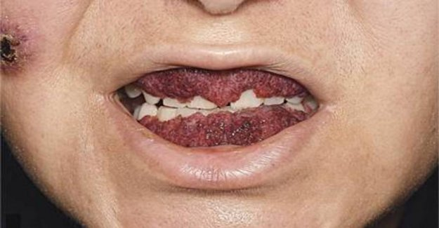 Strong photo: Woman's gums looked like a strawberry