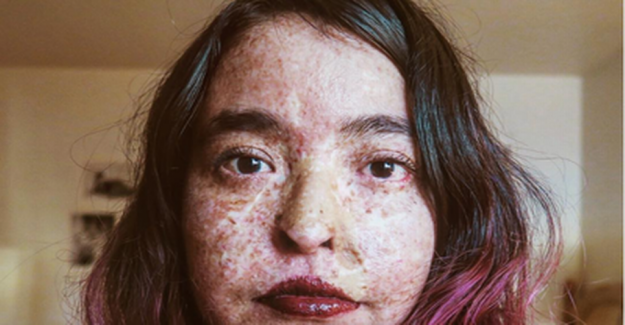 Andrea suffers from a rare disease: Living as a vampire