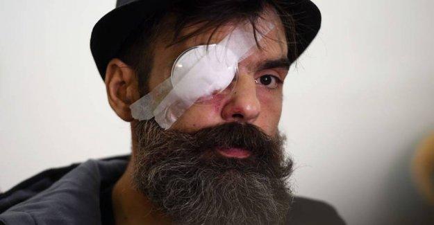 French aktivistleder hit in the eye by gummikugle