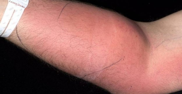 Man sprayed semen into the arm in 18 months: It went very wrong