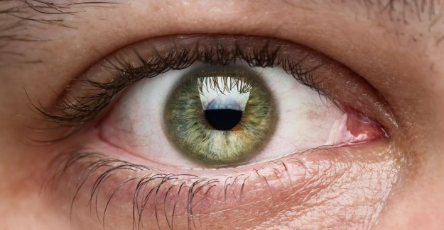 Why we are equipped for a third eyelid and an ear that is made to be able to run