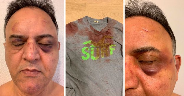 Behnam, 54: being beaten by guards at the hospital