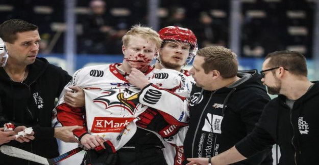 Lynx player gorgeous hero-making - a hurried unconscious opponent's help: He's not breathing