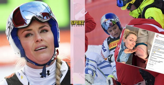 This shows Lindsey Vonn their bruises after the fall