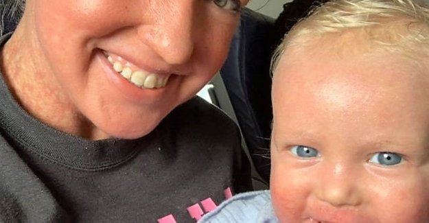 Mother and son of flight set due to skin condition: I felt humiliated