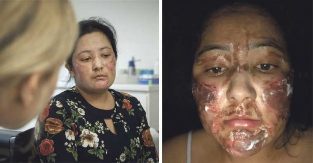 Srijana, 29, was injured by the chemical peel
