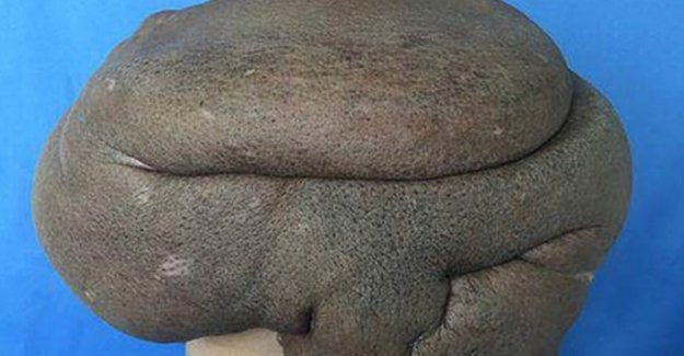 Chinese man (68) shows tumor of almost 15 kg remove