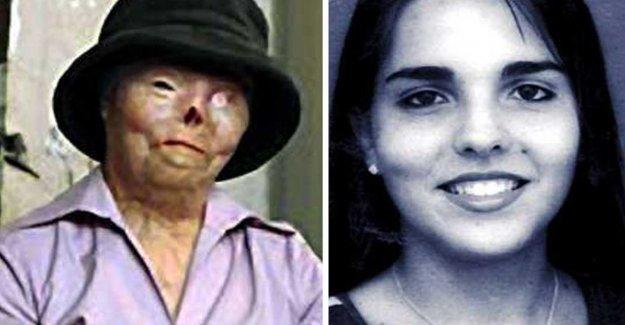 Difficult burn victims, Jacqueline, 40, dead