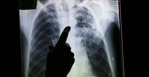 Infectious pulmonary tuberculosis identified in Kortrijk: all residents and staff of shelter Oikonde should be tested