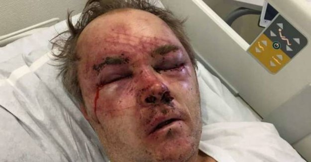 Magnus complained about the neighbor's dog: Knocked unconscious and trampled in the face