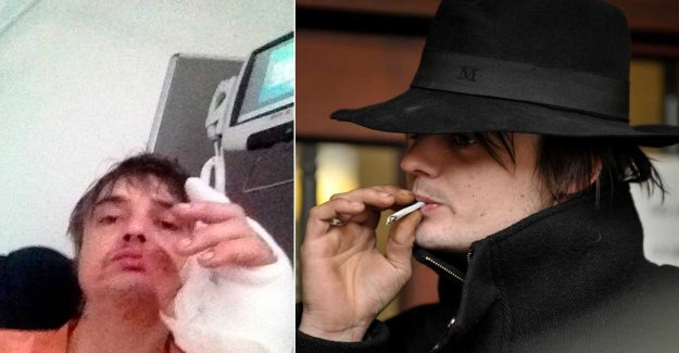 Pete Doherty to the hospital – was attacked by hedgehog