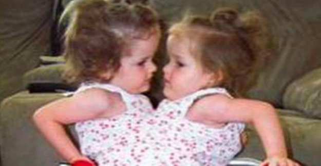 Siamese twins divided in two: Now, they live with a leg each