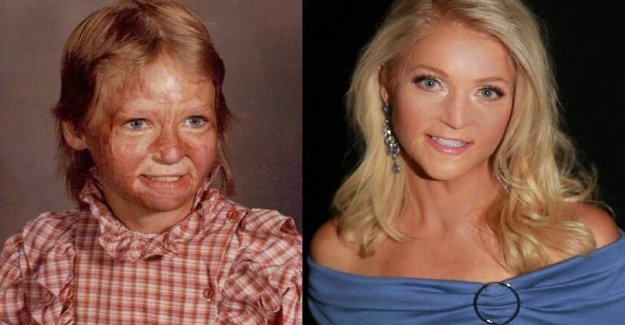 Was burned on 70 percent of the body: Now she's in beauty pageant