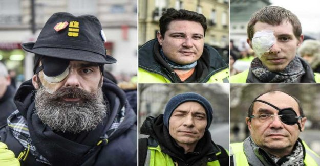 Living with one eye – after the Yellow vests-the protests in France