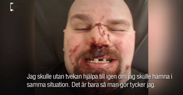 Mikael would help the bus driver – got your teeth eliminated