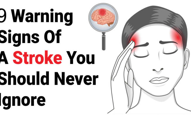 Top 9 signs of stroke you shouldn't ignore
