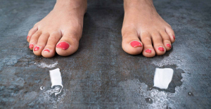 What Causes Sweaty Feet