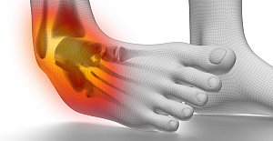 What are the Differences Between an Ankle Fracture and an Ankle Sprain?
